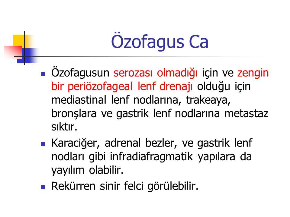 Özofagus Ca