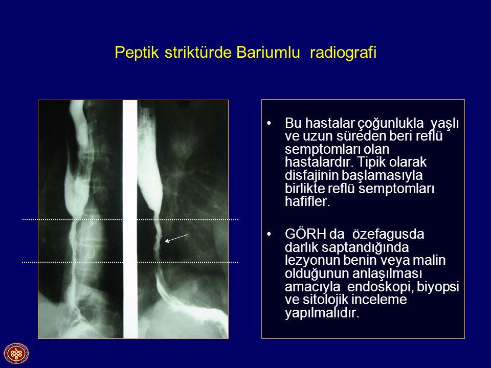 Peptik striktürde Bariumlu radiografi