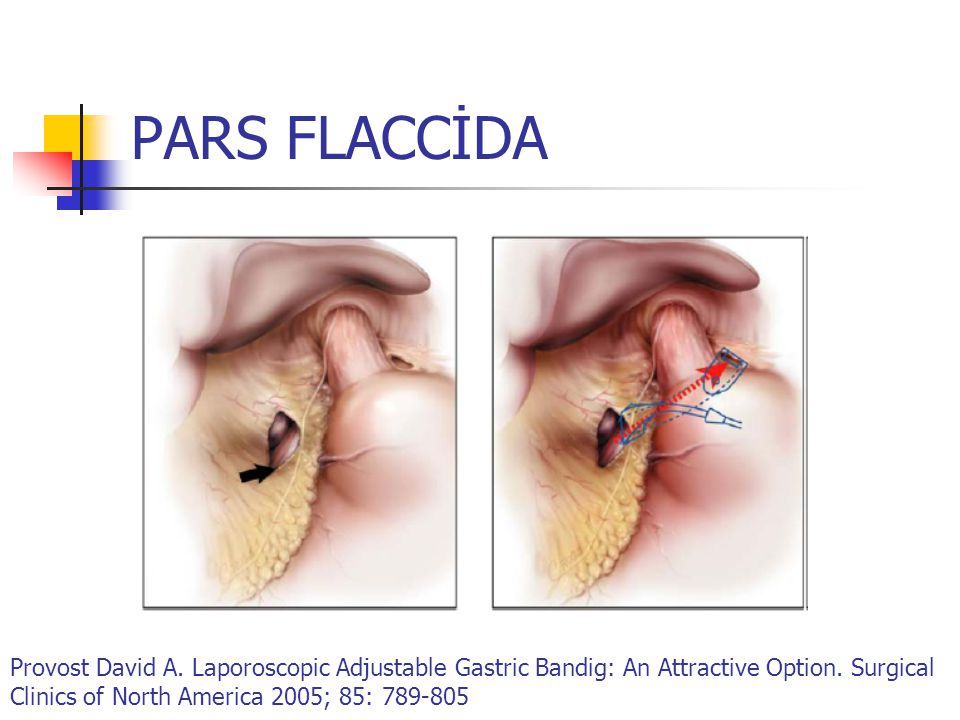 PARS FLACCİDA Provost David A. Laporoscopic Adjustable Gastric Bandig: An Attractive Option.
