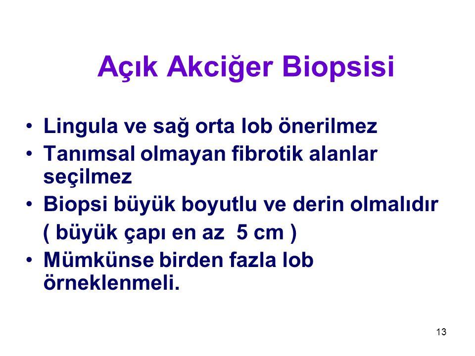 Açık Akciğer Biopsisi Lingula ve sağ orta lob önerilmez