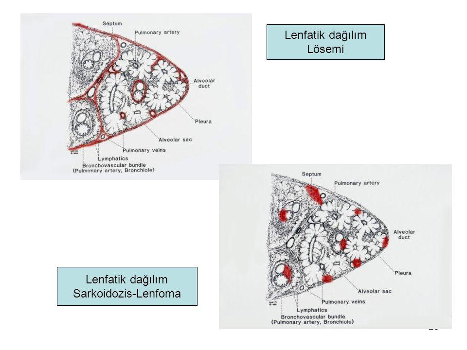 Lenfatik dağılım Lösemi Lenfatik dağılım Sarkoidozis-Lenfoma