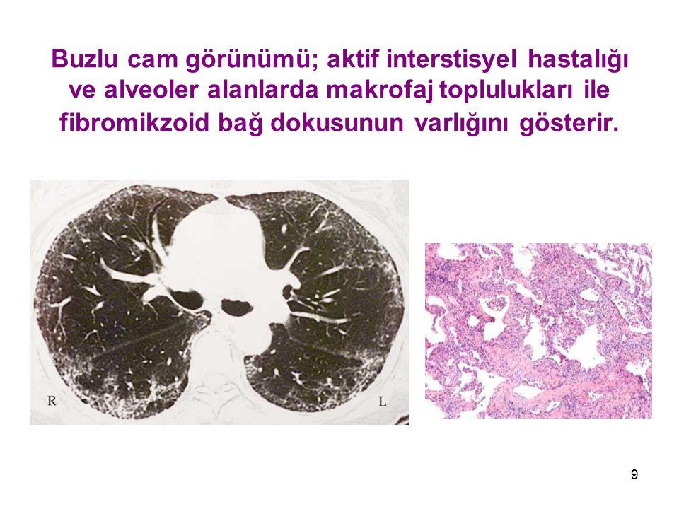 Buzlu cam görünümü; aktif interstisyel hastalığı ve alveoler alanlarda makrofaj toplulukları ile fibromikzoid bağ dokusunun varlığını gösterir.
