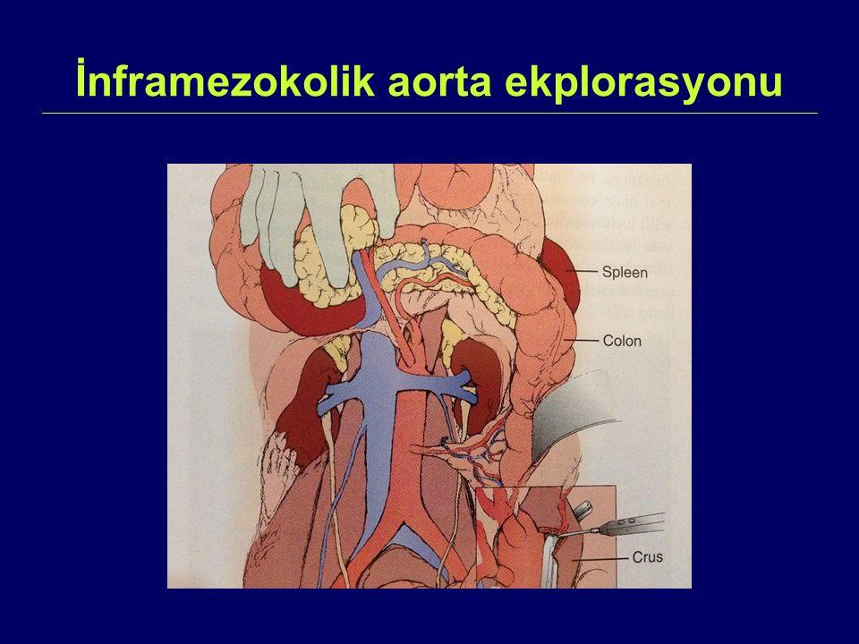 İnframezokolik aorta ekplorasyonu