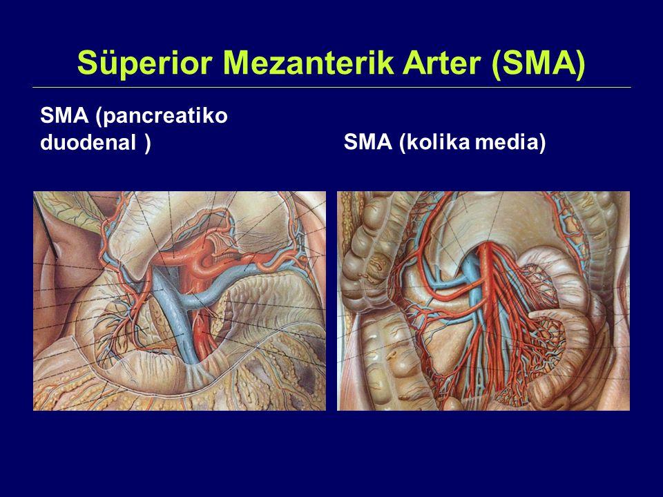 Süperior Mezanterik Arter (SMA)