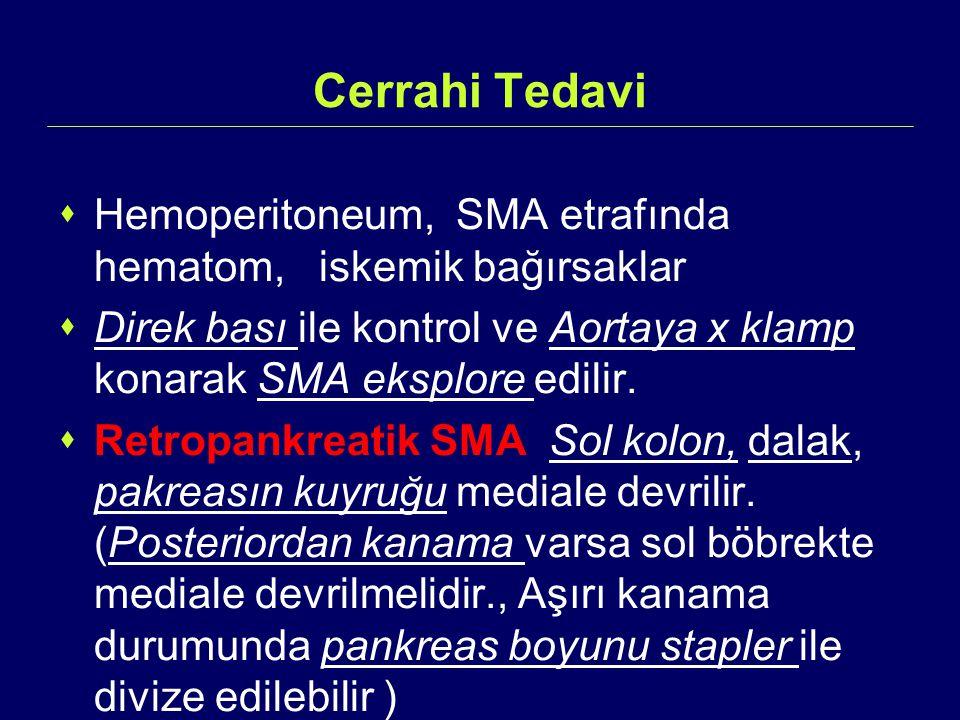 Cerrahi Tedavi Hemoperitoneum, SMA etrafında hematom, iskemik bağırsaklar. Direk bası ile kontrol ve Aortaya x klamp konarak SMA eksplore edilir.