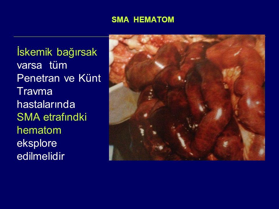 SMA HEMATOM İskemik bağırsak varsa tüm Penetran ve Künt Travma hastalarında SMA etrafındki hematom eksplore edilmelidir.