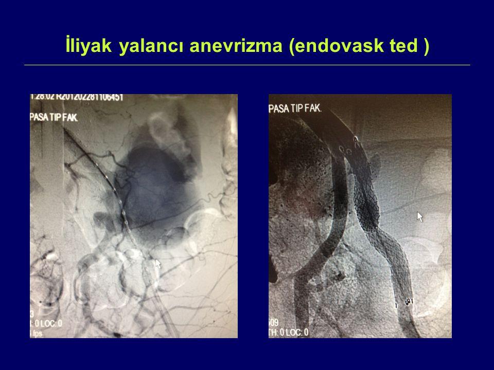 İliyak yalancı anevrizma (endovask ted )