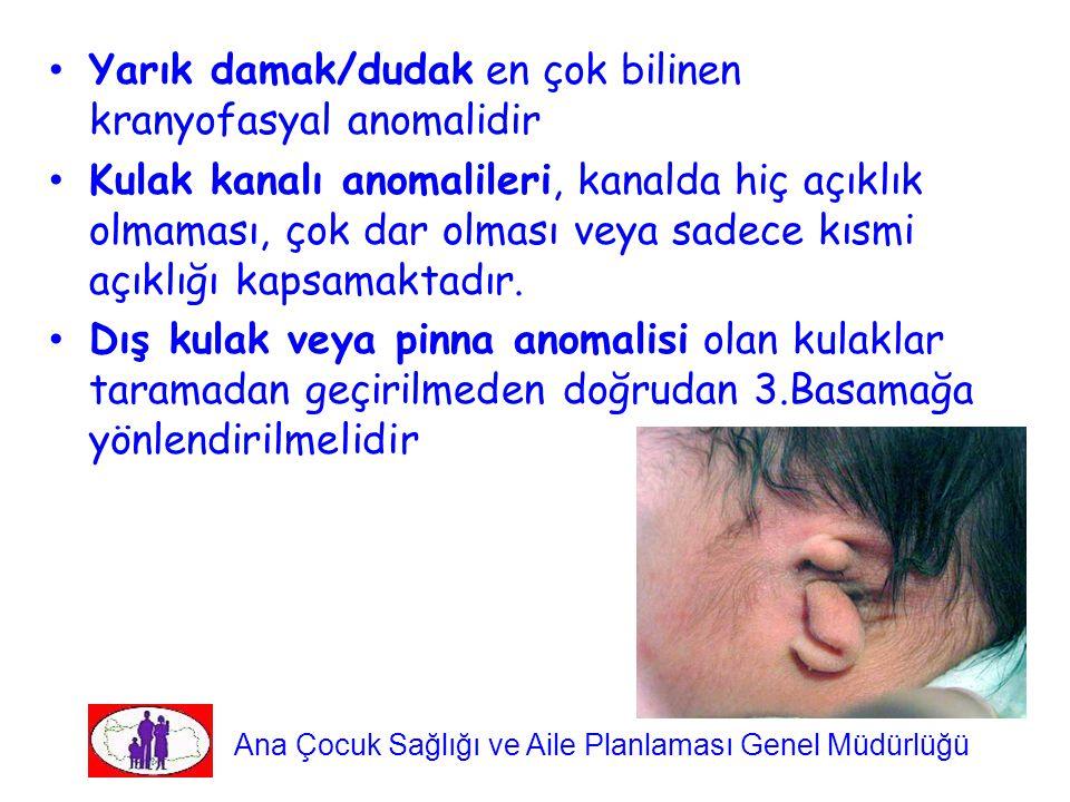Yarık damak/dudak en çok bilinen kranyofasyal anomalidir