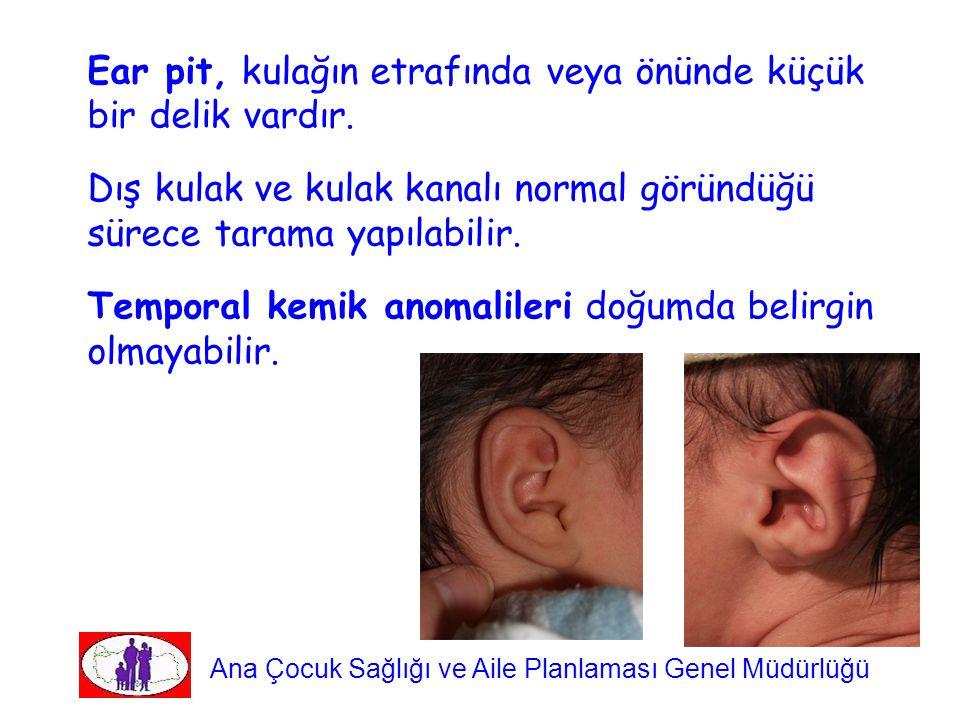 Ear pit, kulağın etrafında veya önünde küçük bir delik vardır