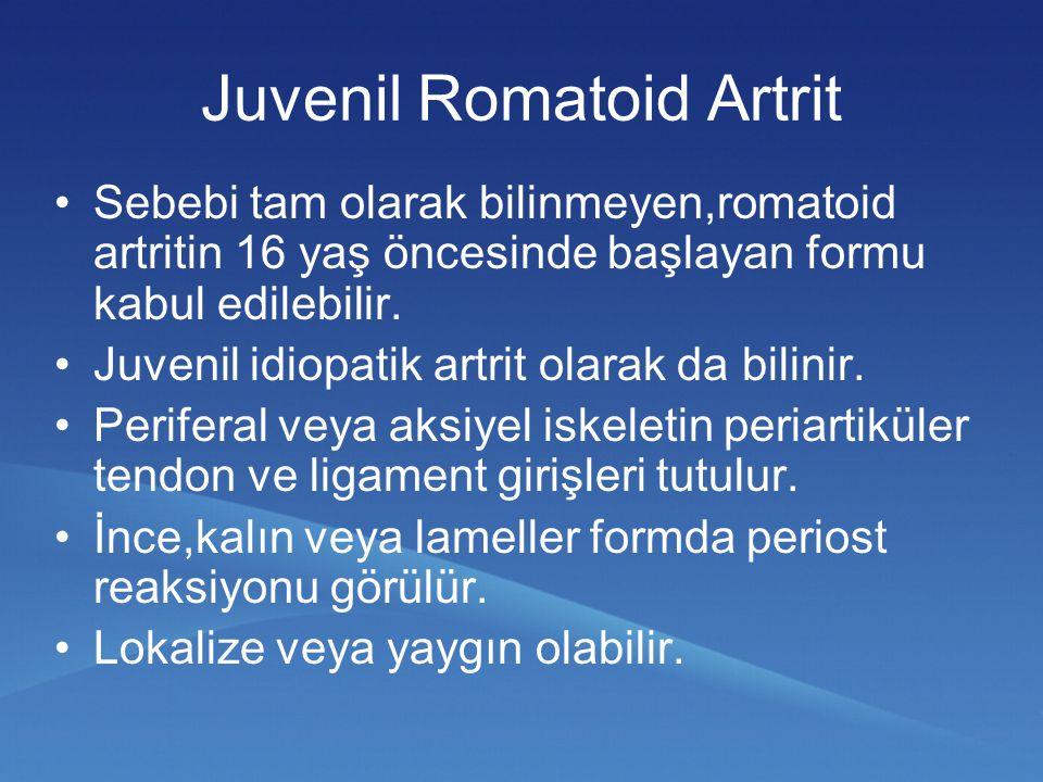 Juvenil Romatoid Artrit