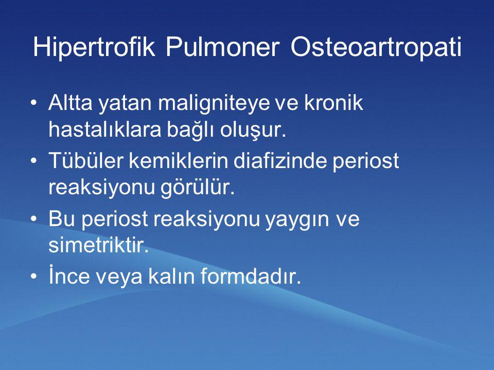 Hipertrofik Pulmoner Osteoartropati