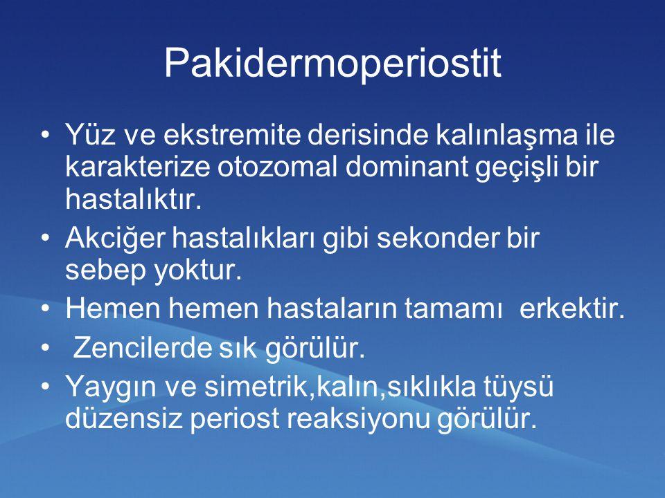 Pakidermoperiostit Yüz ve ekstremite derisinde kalınlaşma ile karakterize otozomal dominant geçişli bir hastalıktır.