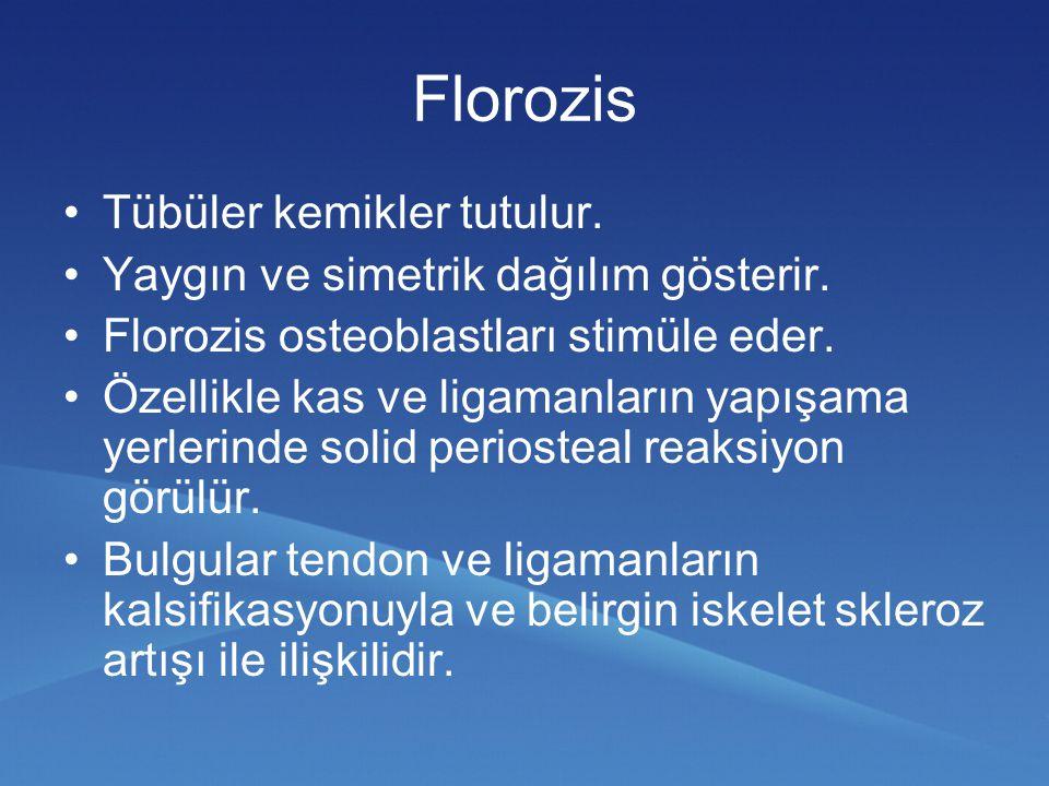Florozis Tübüler kemikler tutulur.
