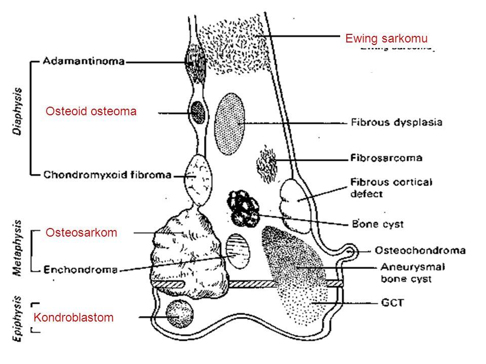 Ewing sarkomu Osteoid osteoma Osteosarkom Kondroblastom