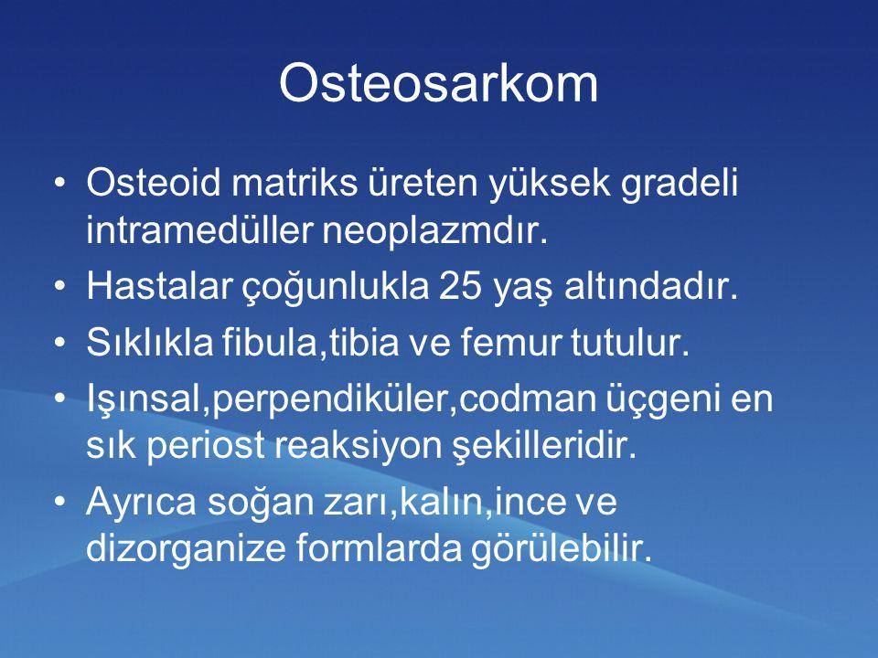 Osteosarkom Osteoid matriks üreten yüksek gradeli intramedüller neoplazmdır. Hastalar çoğunlukla 25 yaş altındadır.