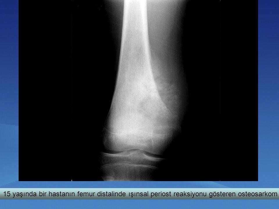 15 yaşında bir hastanın femur distalinde ışınsal periost reaksiyonu gösteren osteosarkom