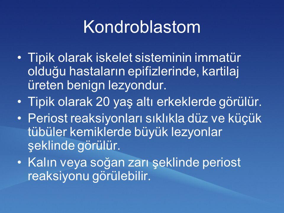 Kondroblastom Tipik olarak iskelet sisteminin immatür olduğu hastaların epifizlerinde, kartilaj üreten benign lezyondur.