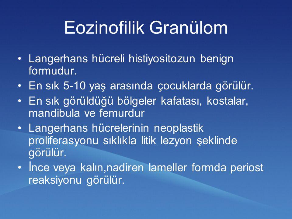 Eozinofilik Granülom Langerhans hücreli histiyositozun benign formudur. En sık 5-10 yaş arasında çocuklarda görülür.