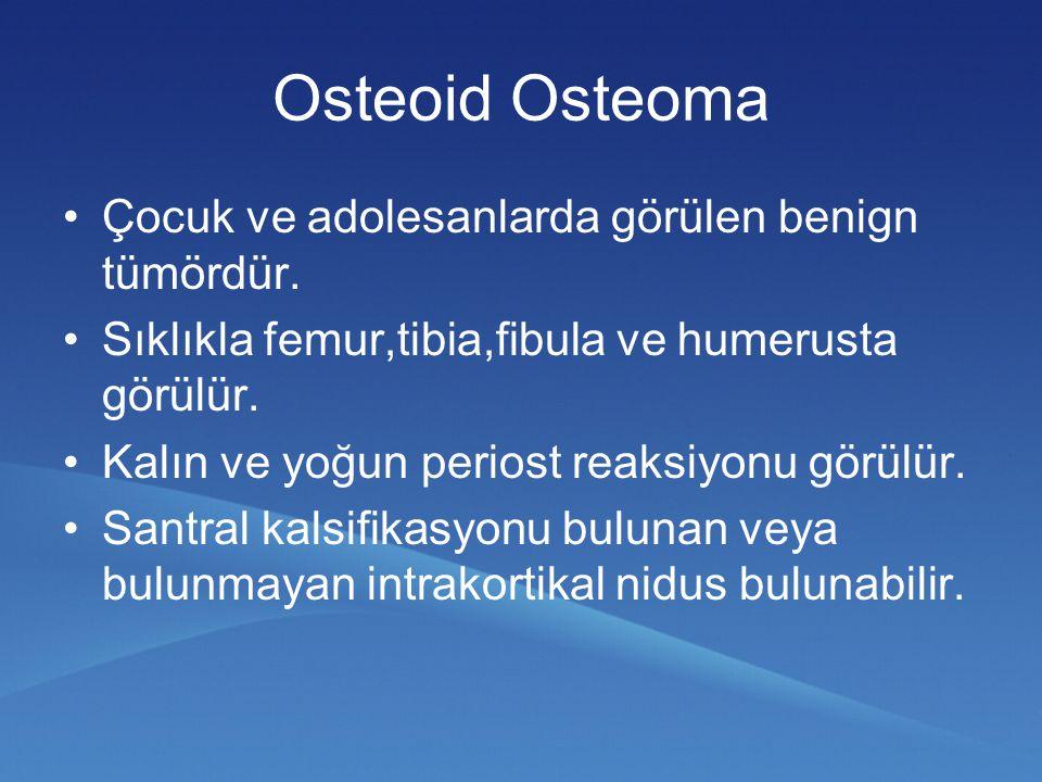 Osteoid Osteoma Çocuk ve adolesanlarda görülen benign tümördür.