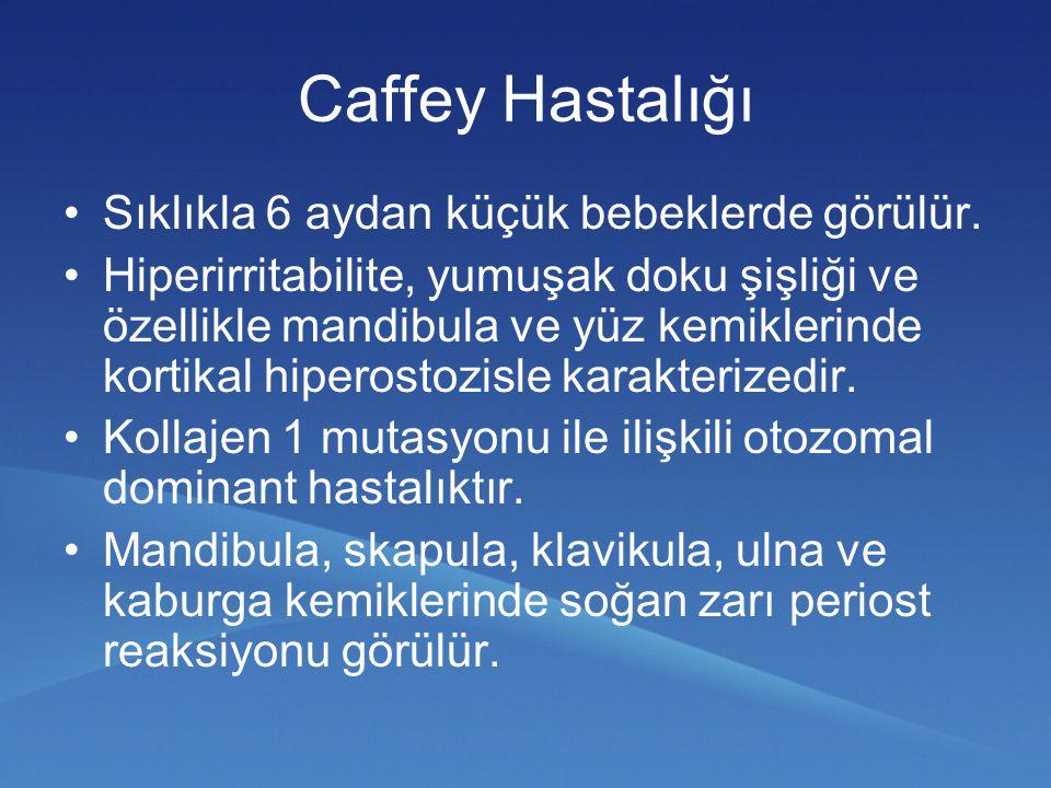 Caffey Hastalığı Sıklıkla 6 aydan küçük bebeklerde görülür.