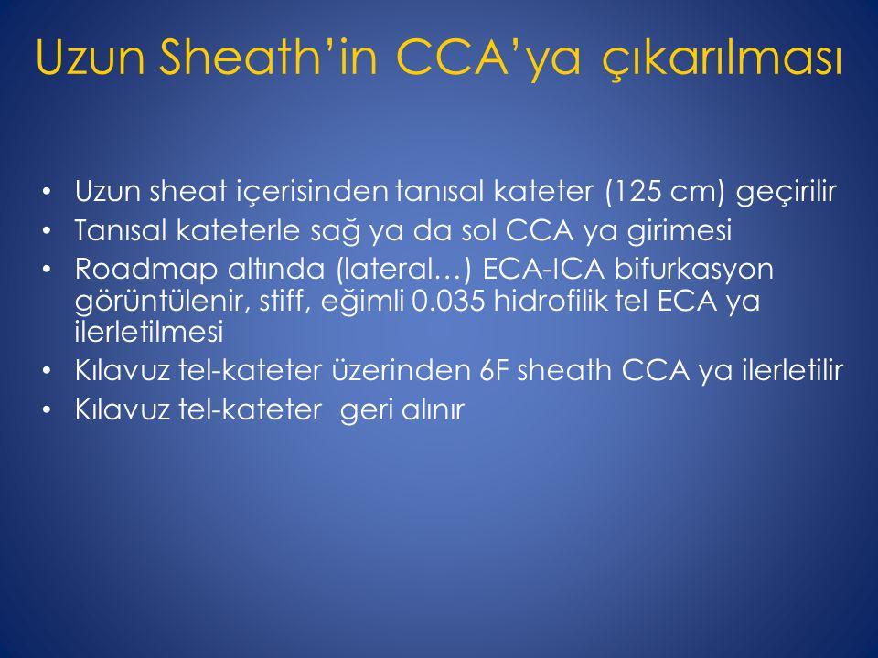 Uzun Sheath'in CCA'ya çıkarılması