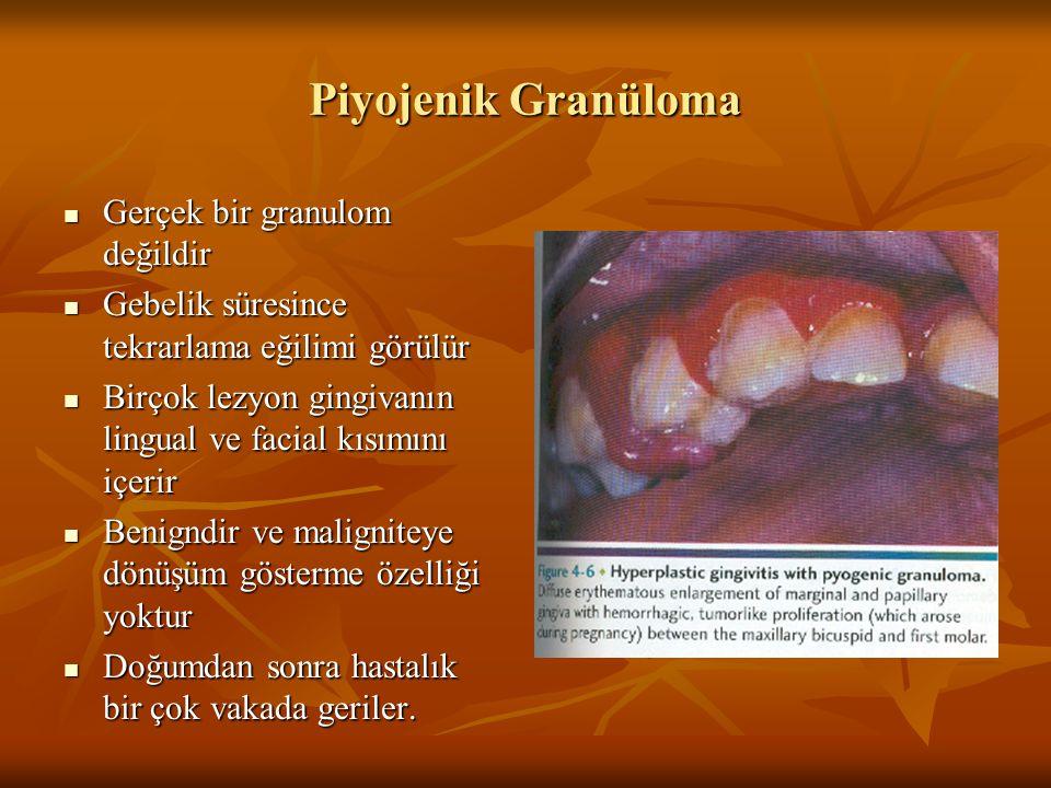 Piyojenik Granüloma Gerçek bir granulom değildir
