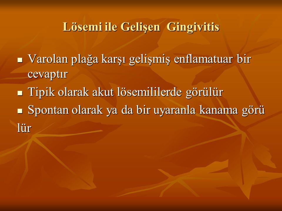 Lösemi ile Gelişen Gingivitis