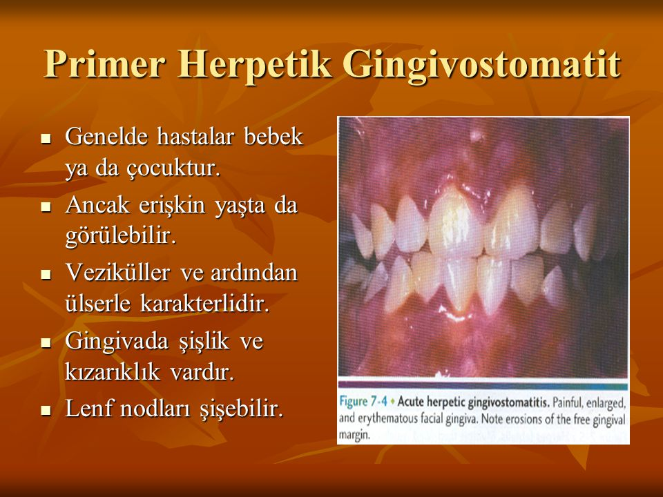Primer Herpetik Gingivostomatit