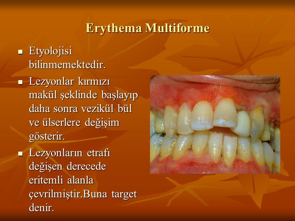 Erythema Multiforme Etyolojisi bilinmemektedir.