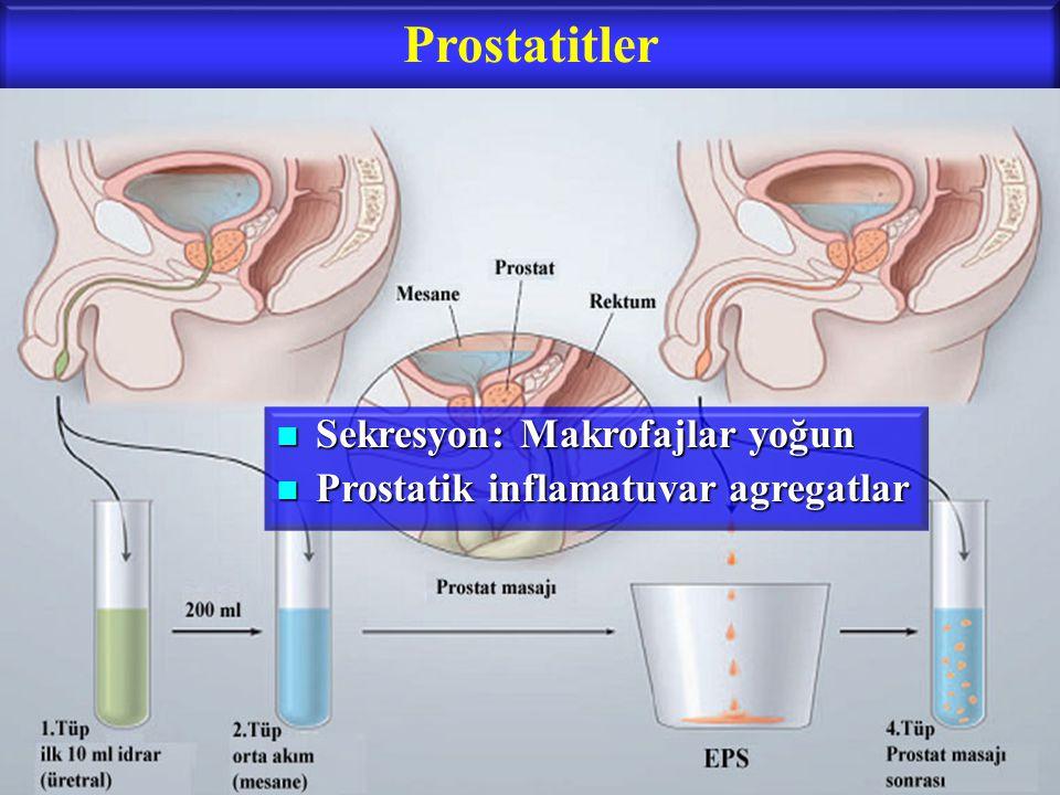 Prostatitler Sekresyon: Makrofajlar yoğun