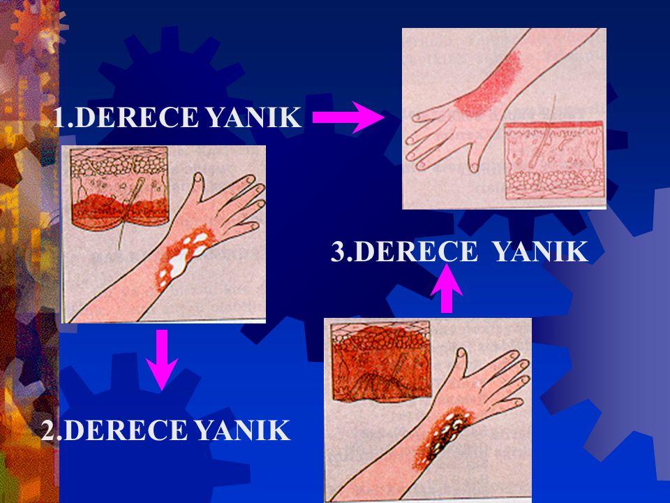 1.DERECE YANIK 3.DERECE YANIK 2.DERECE YANIK