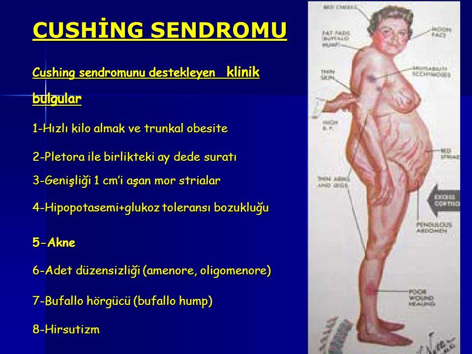 CUSHİNG SENDROMU Cushing sendromunu destekleyen klinik bulgular