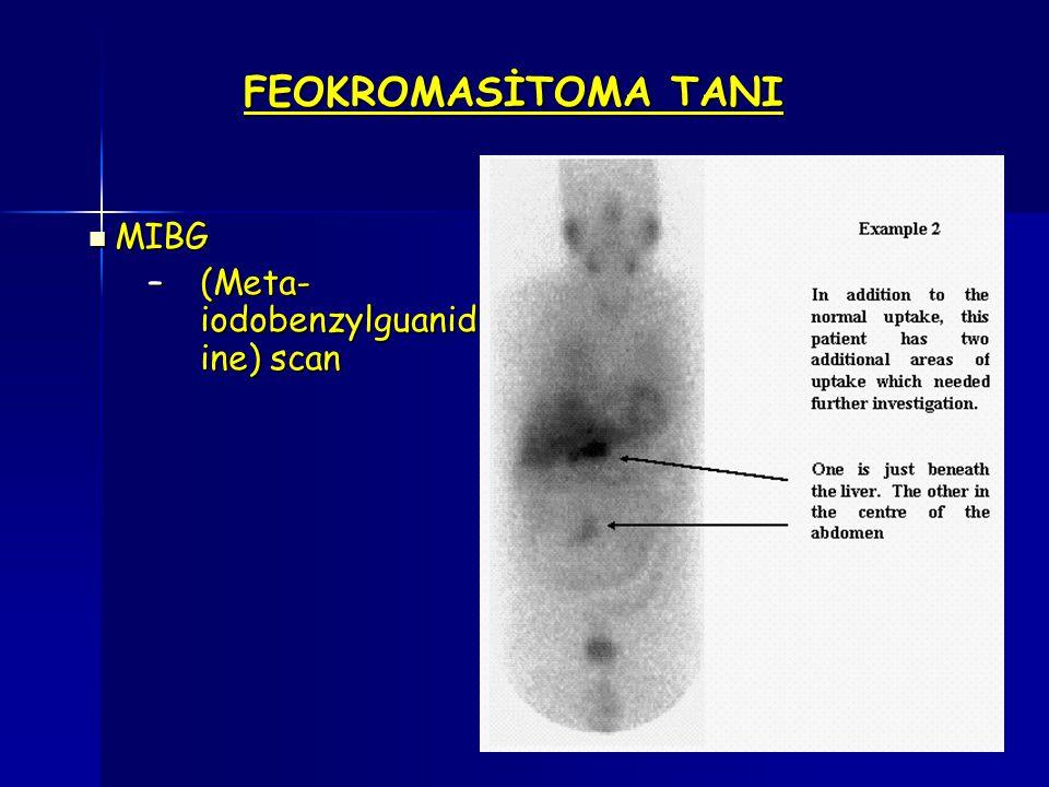 FEOKROMASİTOMA TANI MIBG (Meta-iodobenzylguanidine) scan