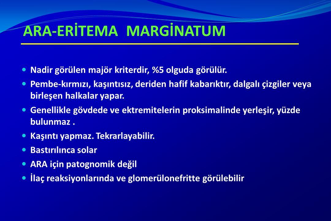ARA-ERİTEMA MARGİNATUM