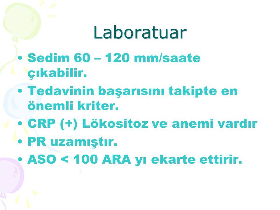 Laboratuar Sedim 60 – 120 mm/saate çıkabilir.