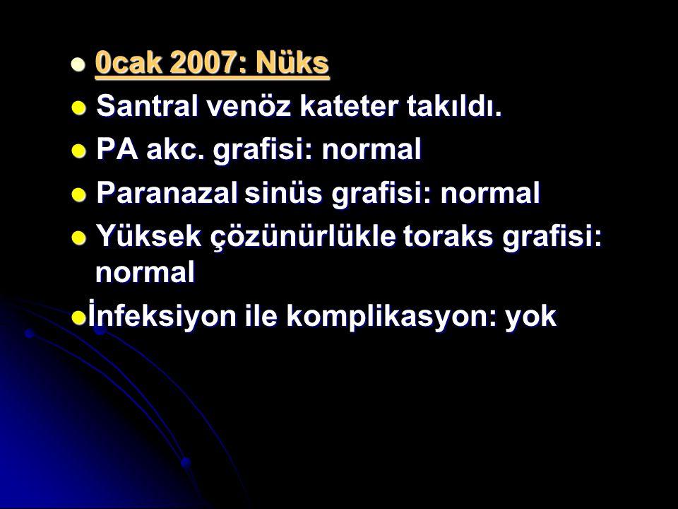 0cak 2007: Nüks ● Santral venöz kateter takıldı. ● PA akc. grafisi: normal. ● Paranazal sinüs grafisi: normal.