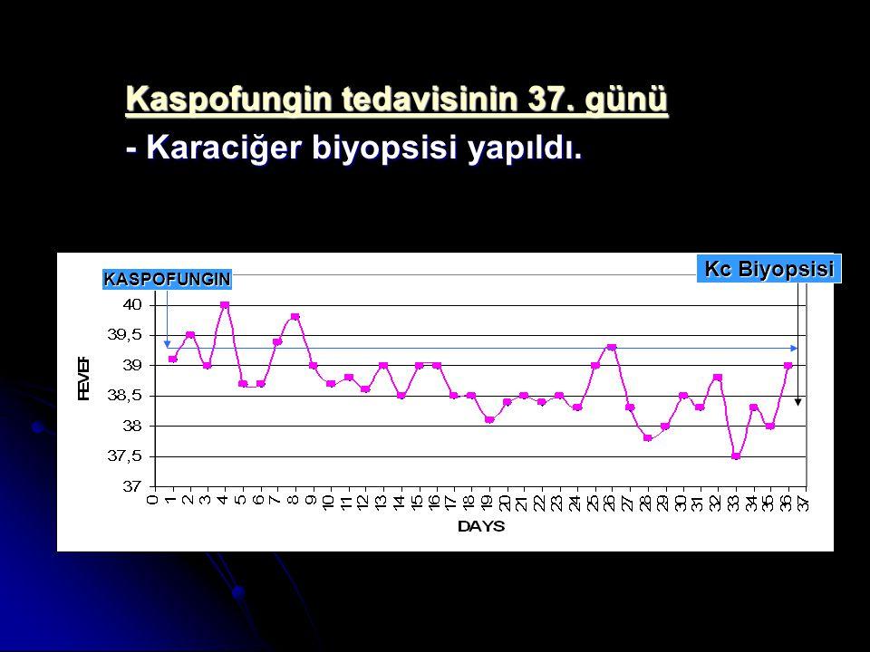 Kaspofungin tedavisinin 37. günü - Karaciğer biyopsisi yapıldı.
