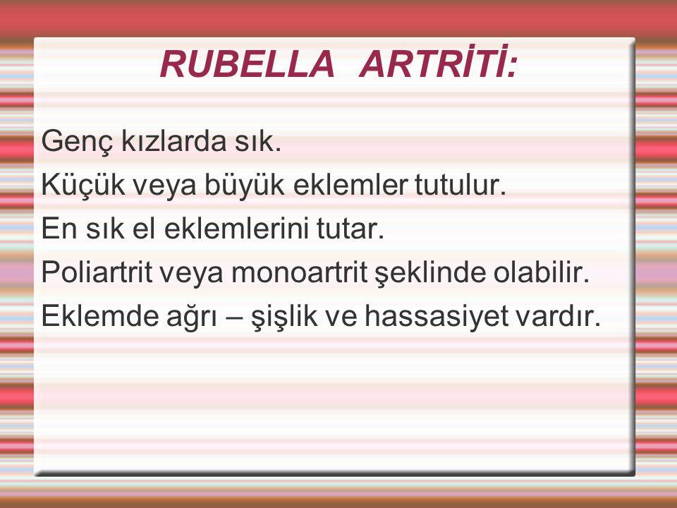 RUBELLA ARTRİTİ: Genç kızlarda sık. Küçük veya büyük eklemler tutulur.