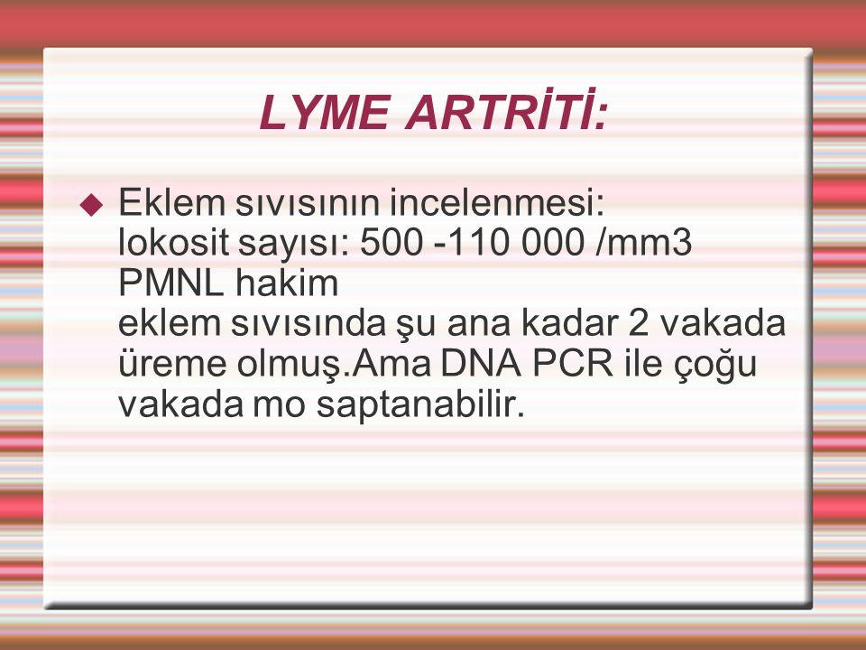 LYME ARTRİTİ:
