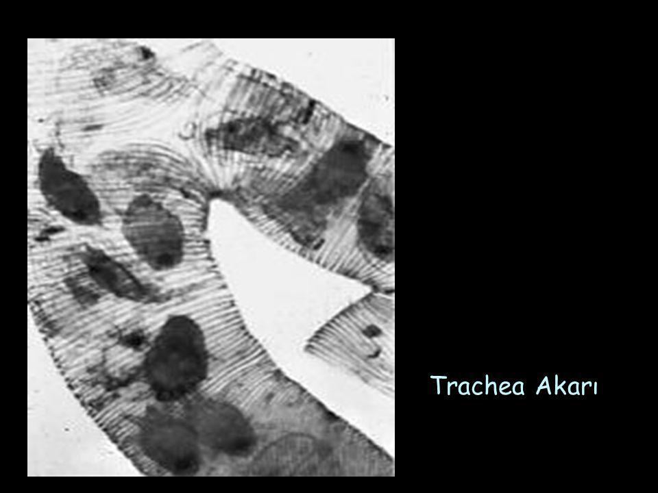 Trachea Akarı