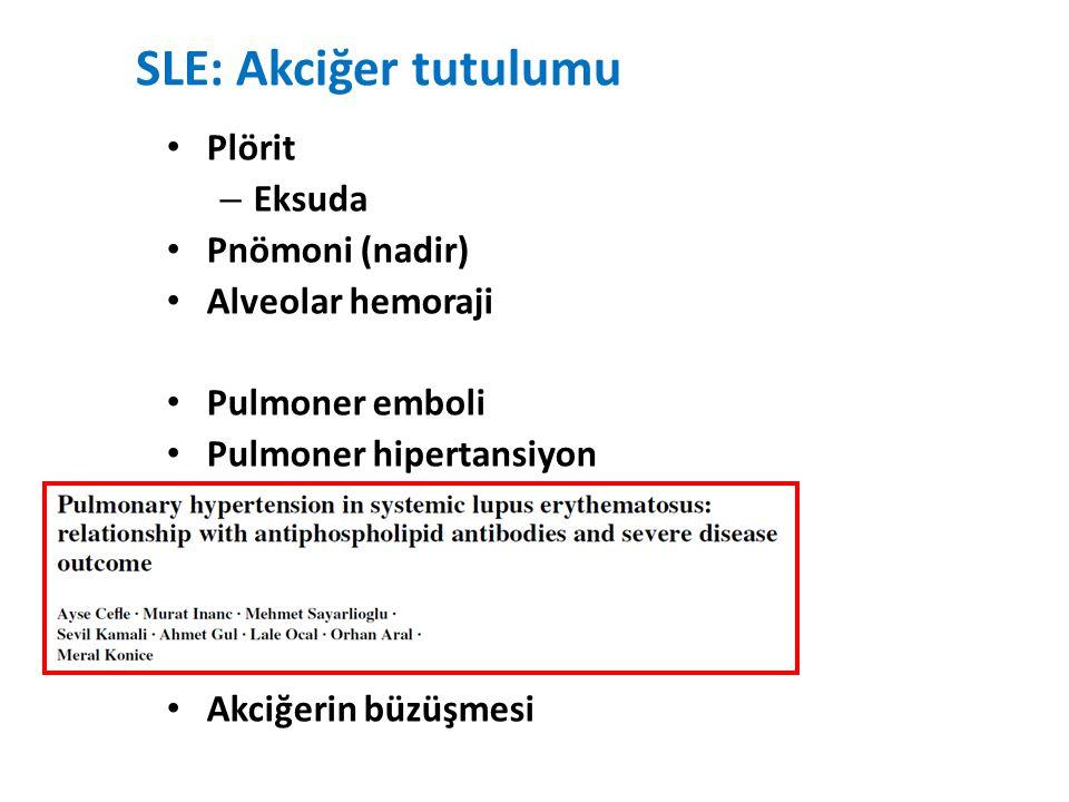SLE: Akciğer tutulumu Plörit Eksuda Pnömoni (nadir) Alveolar hemoraji