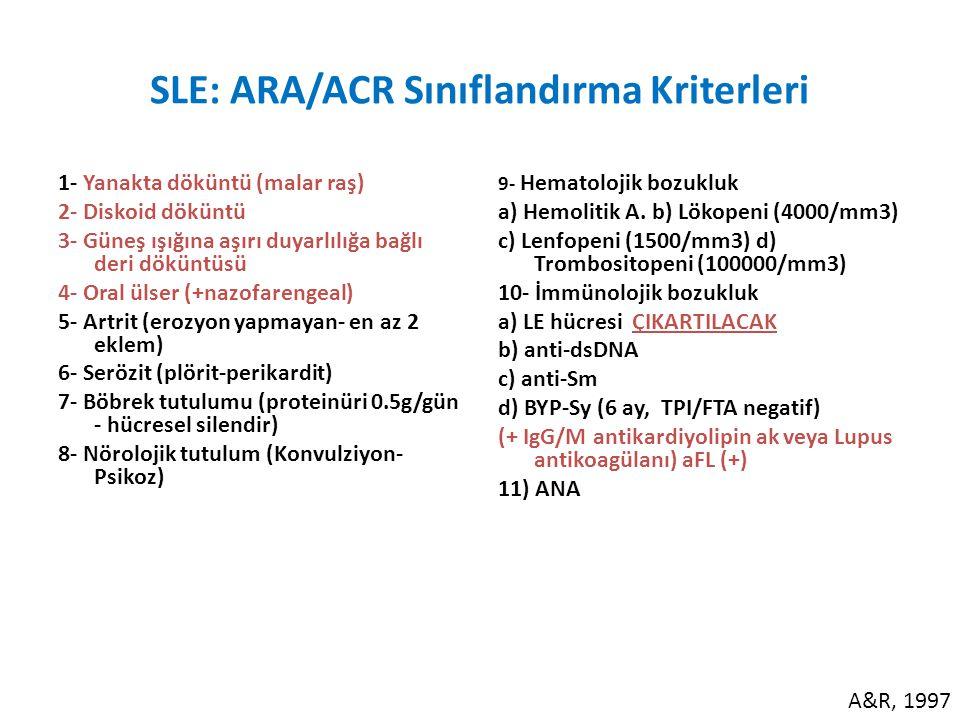 SLE: ARA/ACR Sınıflandırma Kriterleri