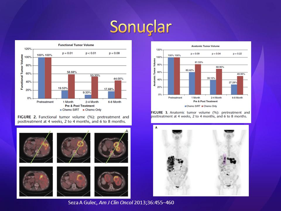 Sonuçlar Seza A Gulec, Am J Clin Oncol 2013;36:455–460