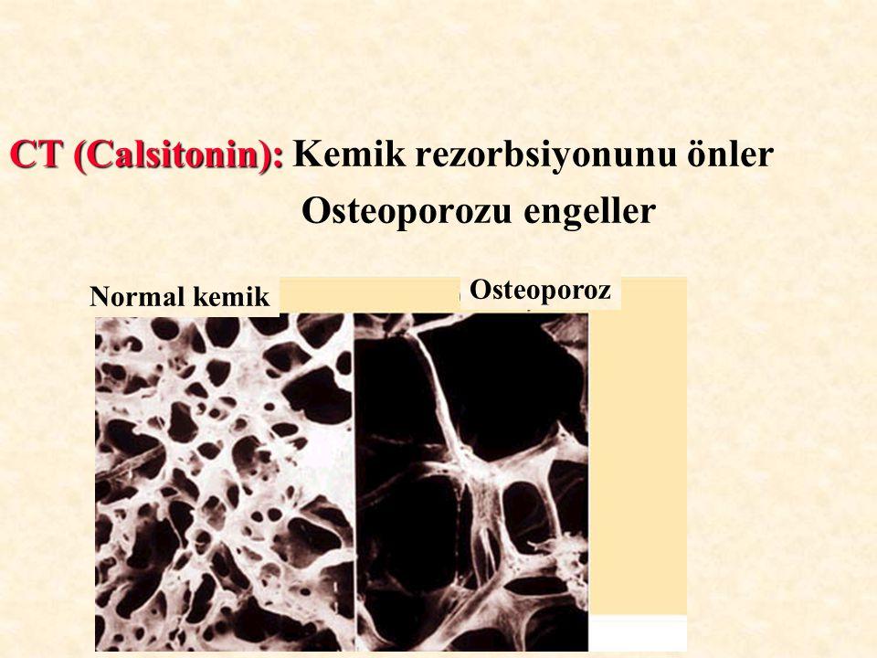 CT (Calsitonin): Kemik rezorbsiyonunu önler Osteoporozu engeller