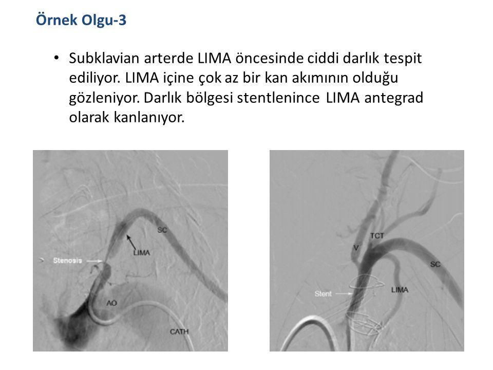 Örnek Olgu-3