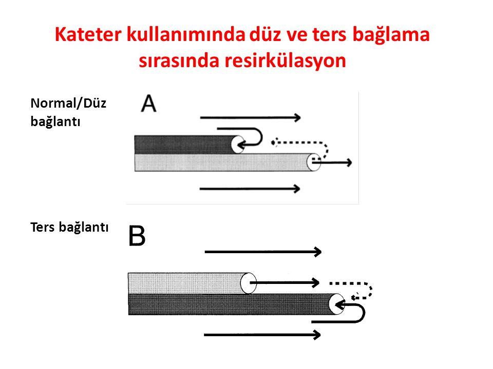 Kateter kullanımında düz ve ters bağlama sırasında resirkülasyon