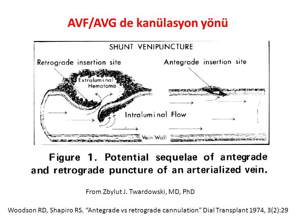 AVF/AVG de kanülasyon yönü