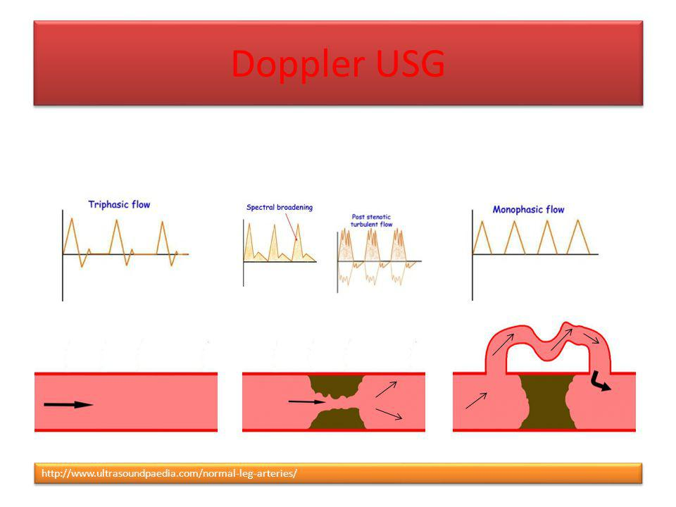 Doppler USG http://www.ultrasoundpaedia.com/normal-leg-arteries/