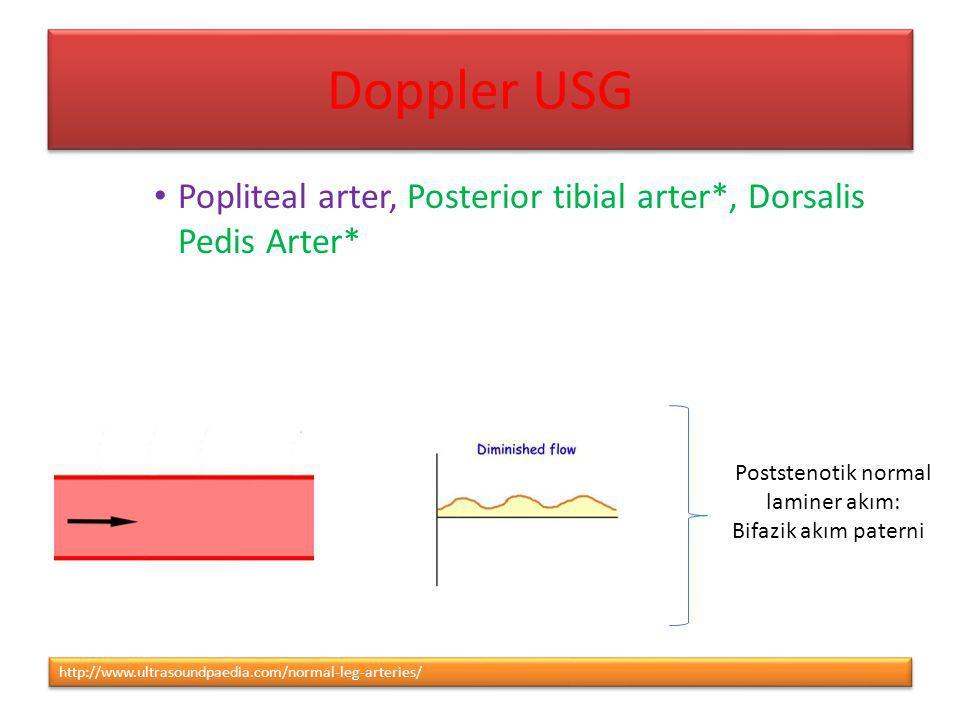 Doppler USG Popliteal arter, Posterior tibial arter*, Dorsalis Pedis Arter* Poststenotik normal. laminer akım: