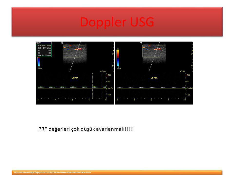 Doppler USG PRF değerleri çok düşük ayarlanmalı!!!!!